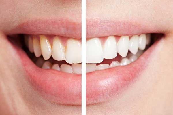 Blanquemiento Dental